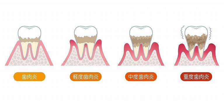 歯周病の状態