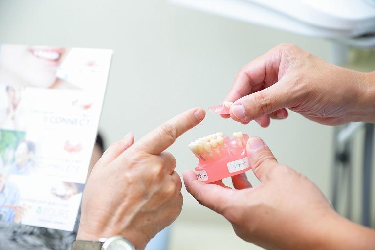 ユアー歯科クリニックの入れ歯
